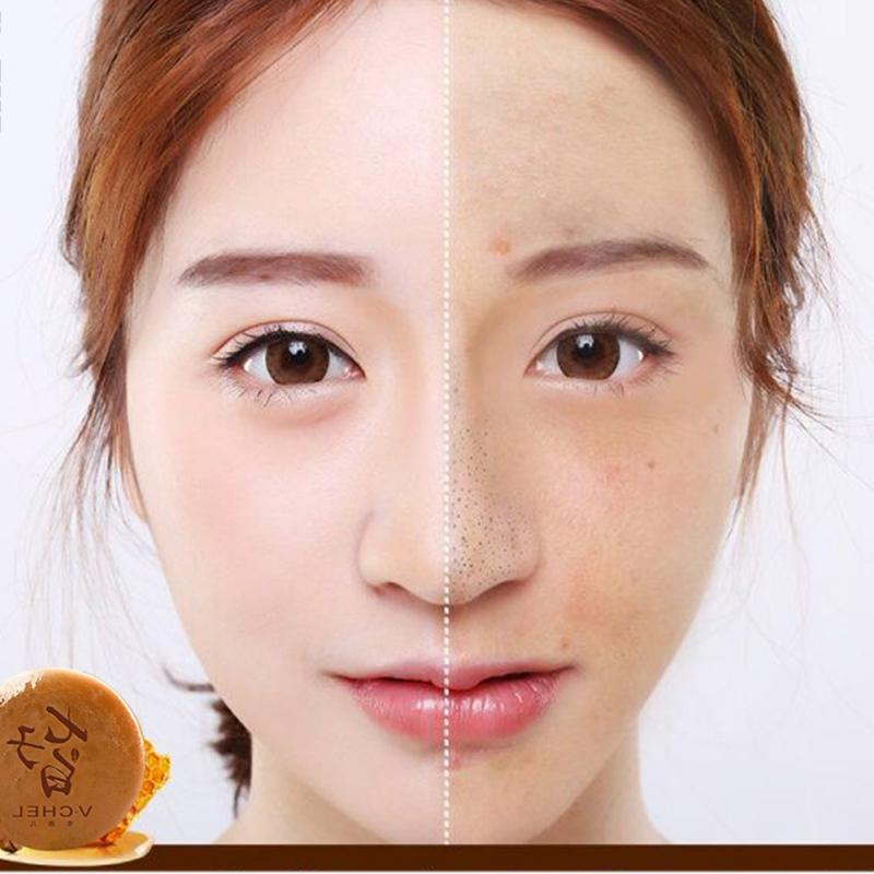 New Chinese Medicine White <font><b>Face</b></font> <font><b>Blackhead</b></font> <font><b>Blemish</b></font> Skin