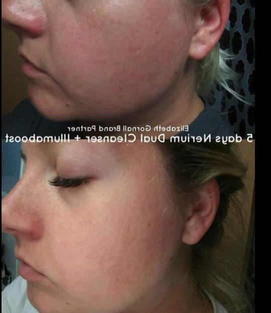 NEW Nerium Double-Cleansing Face Free Post