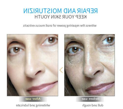 Pure Hyaluronic Face Face Collagen Anti Wrinkle USA